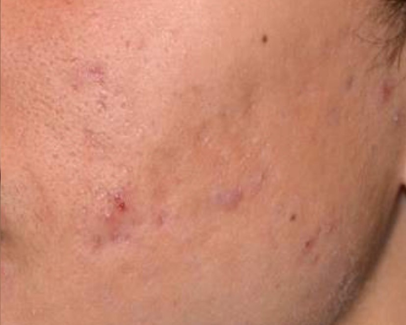 Laser Treatment of Acne Scaring After