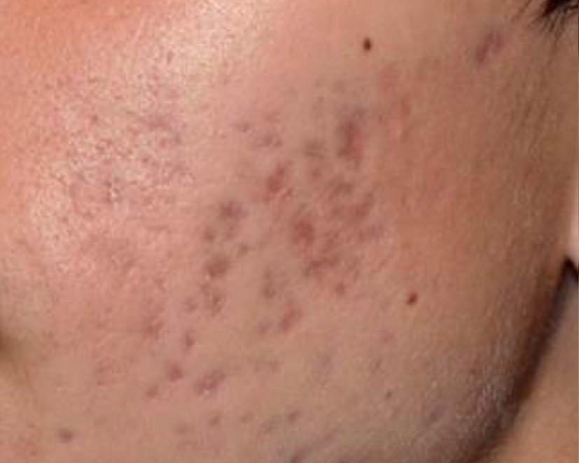 Laser Treatment of Acne Scaring Before