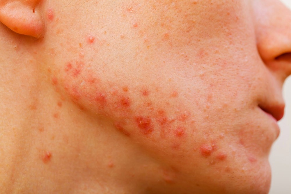 Acne Treatment Perth