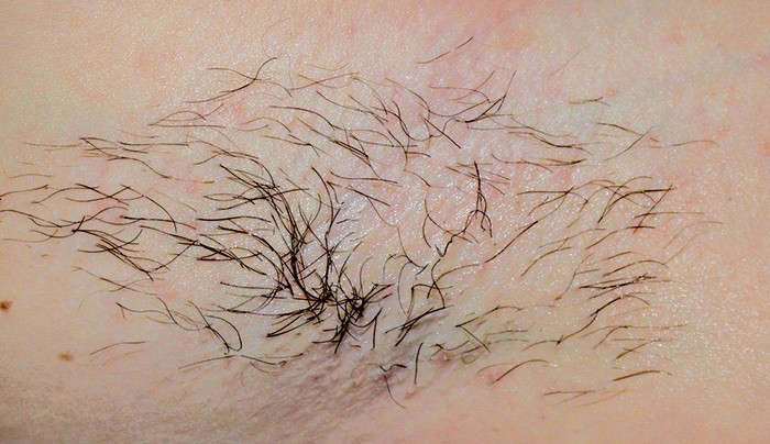 Body Hair Removal Perth