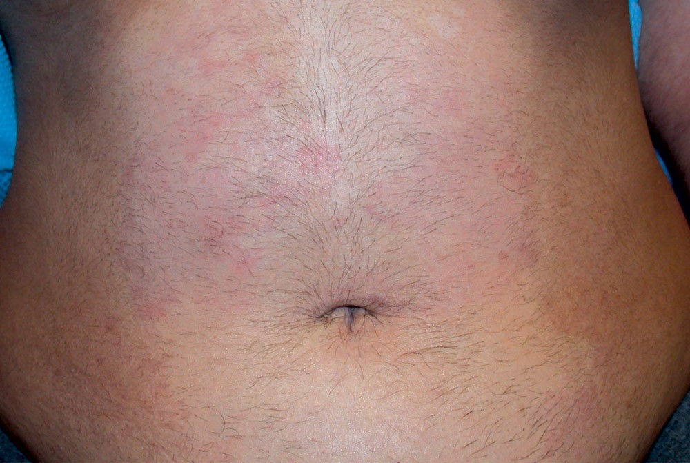Abdomen Laser Hair Removal Perth