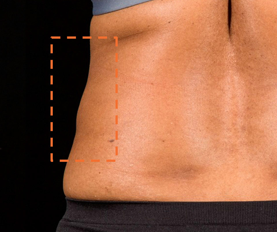Sculpsure Body Contouring After