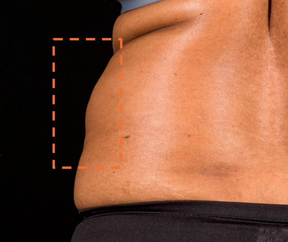 Sculpsure Body Contouring Before
