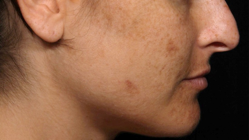 Laser Treatment of Pigmentation