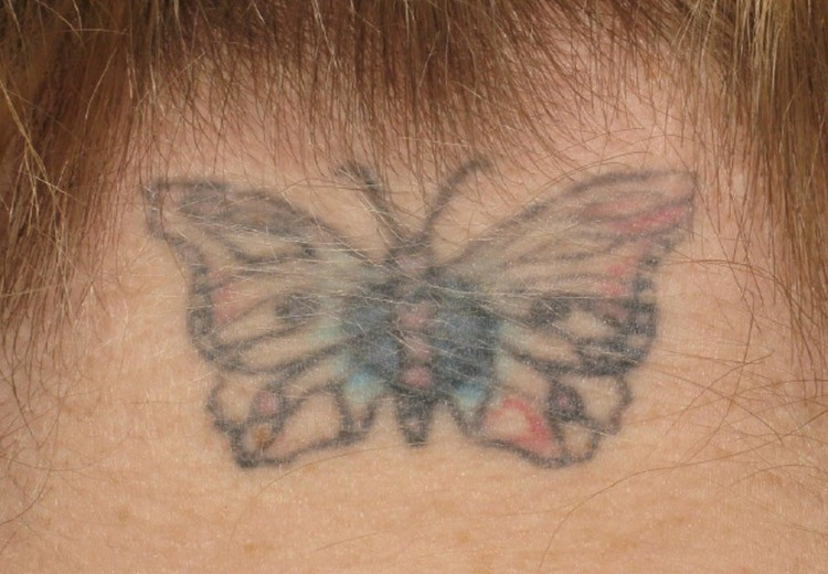 Tattoo Removal Perth