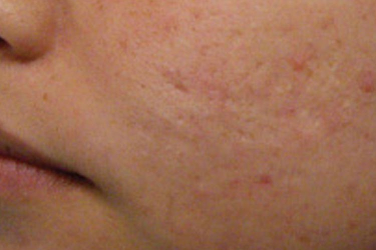 Fractional Laser for Acne Scaring After