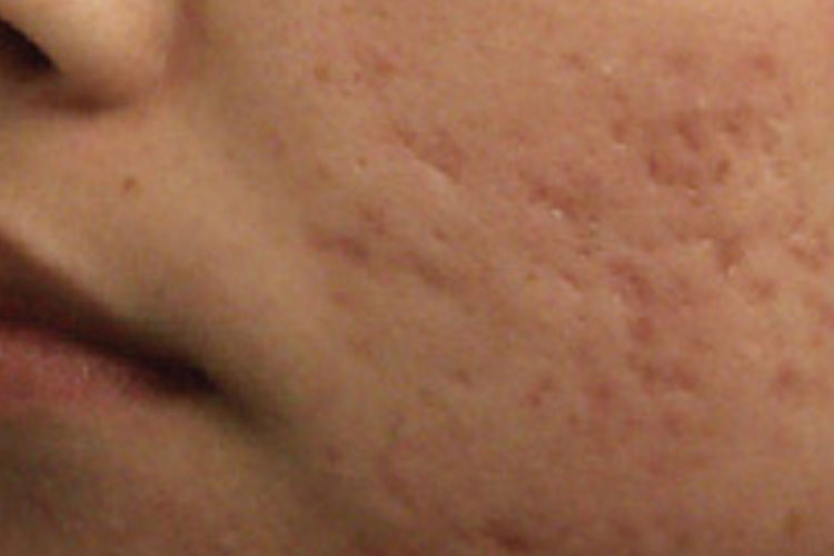 Fractional Laser for Acne Scaring Before
