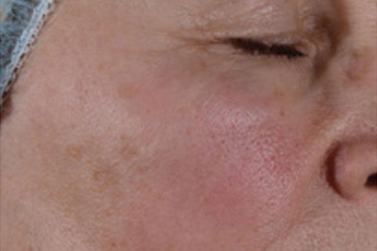 Fractional Laser Treatment Before