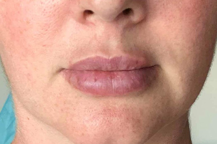 Lip Injections Rockingham | Lip Fillers Rockingham | Book Now