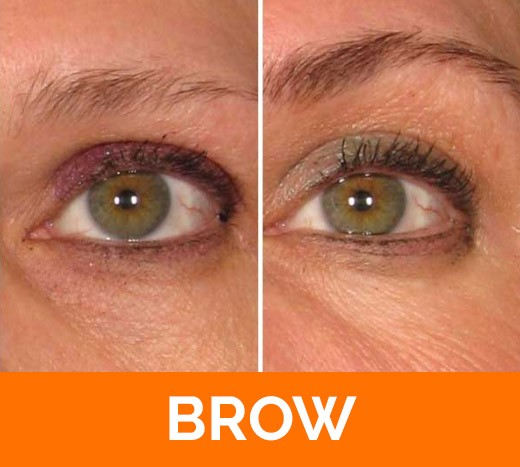 before and after brow Ultherapy