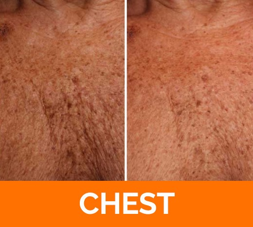 before and after chest Ultherapy