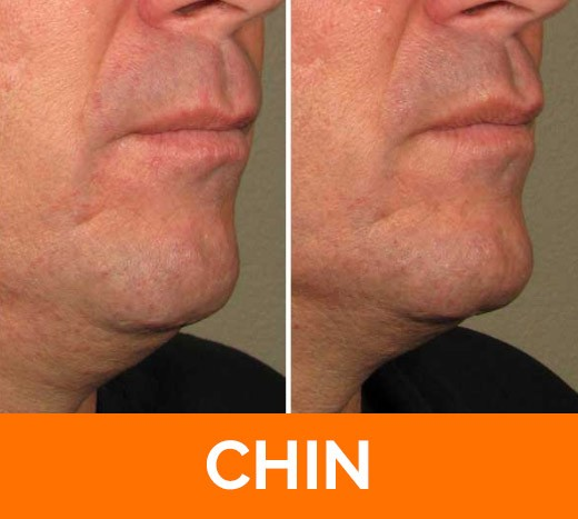 before and after chin Ultherapy
