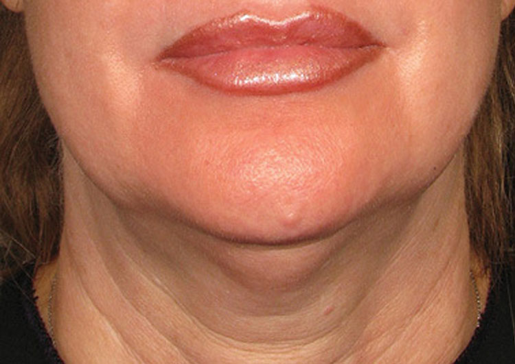 Ultherapy Treatment for neck