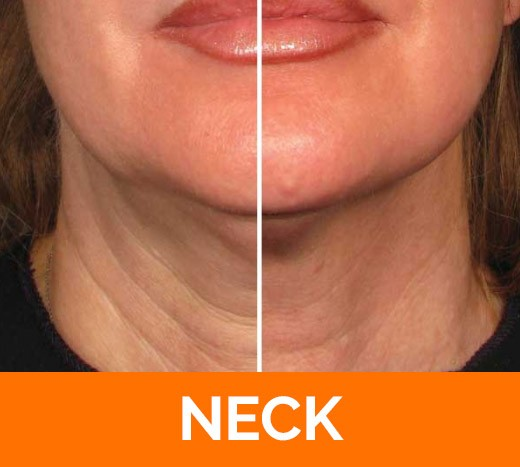 before and after neck Ultherapy